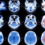 brain scan images Queener Law