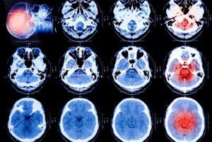 brain scan images Queener Law